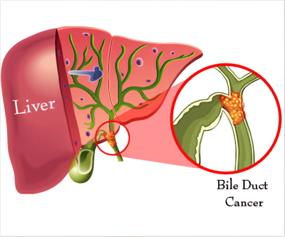 Bile-duct-cancers-(Cholangiocarcinoma)