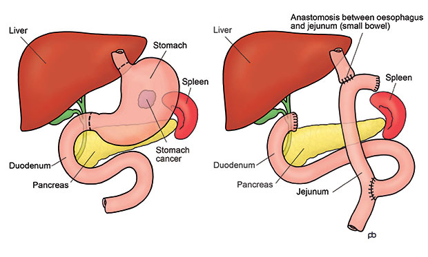 Cancer-of-Stomach-–-Total-D2-Gastrectomy