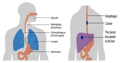 ESOPHAGUS-Symptoms