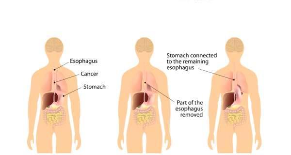 ESOPHAGUS-Treatment