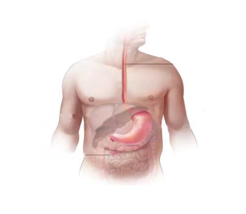 esophagus cancer surgery in suratesophagus cancer surgery