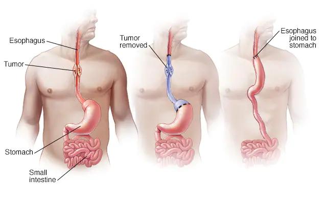 Esophagus-Surgery
