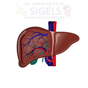 gallbladder surgerygallbladder surgery