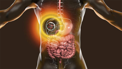 Hydatid-cyst-of-Liver