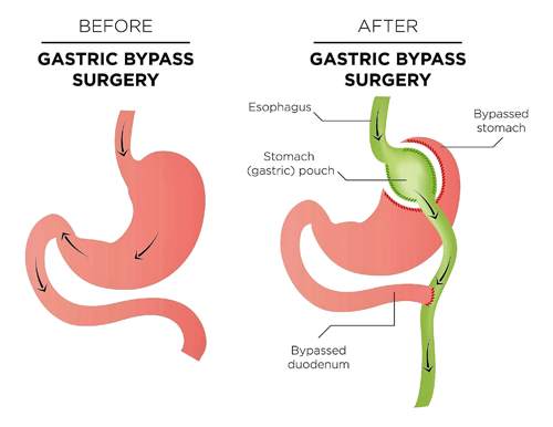 Laparoscopic-Gastric-Bypass-Surgery