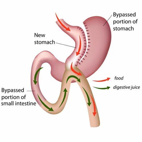 Laparoscopic-MGB-–-Mini-Gastric-Bypass