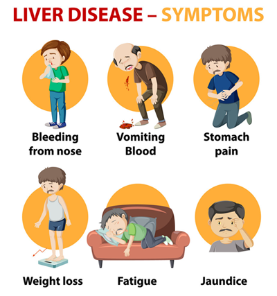 Liver-Disease-Symptoms-and-Signs