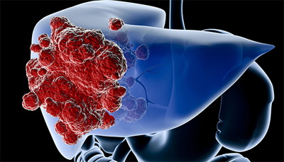 Liver-cancer-and-tumours