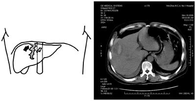 Liver-trauma-and-accident