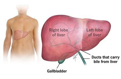 Metastatic-liver-tumors