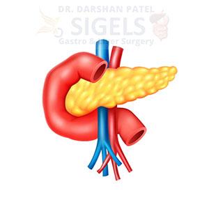 Pancreas surgeon in suratPancreas surgeon in surat