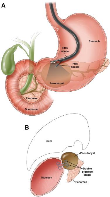 pseudocyst of pancreas, Pancreatic Surgeon in Suratpseudocyst of pancreas