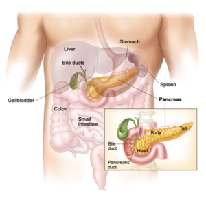 Whipple Surgery for Pancreatic Cancer in SuratWhipple Surgery for Pancreatic Cancer in Surat