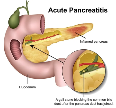 Surgery for Pancreatic necrosis Acute Pancreatitis, Surgery for Chronic Pancreatitis in SuratSurgery for Pancreatic necrosis Acute Pancreatitis